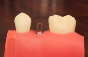 implantabutment