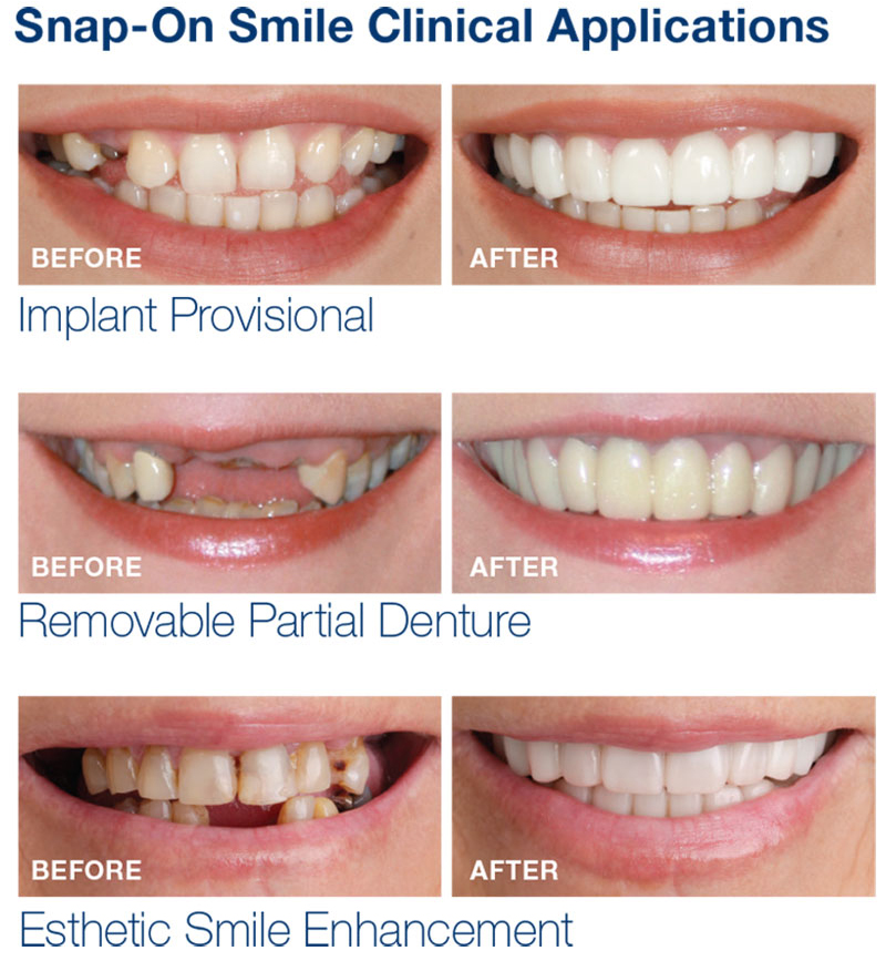 Get Clear Aligners Smile Direct Club  On Credit