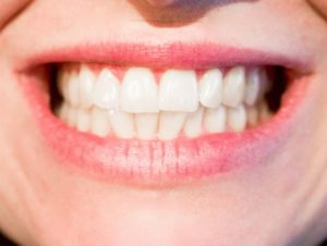 Who is a good candidate for invisalign the healthy mouth project many people come to me and ask the question am i a good candidate for invisalign you may be wondering the same thing about yourself solutioingenieria Choice Image